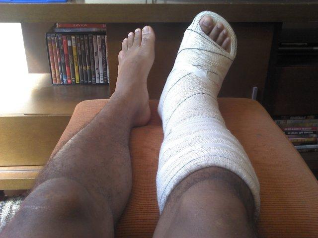 Minha lesão no tornozelo direito